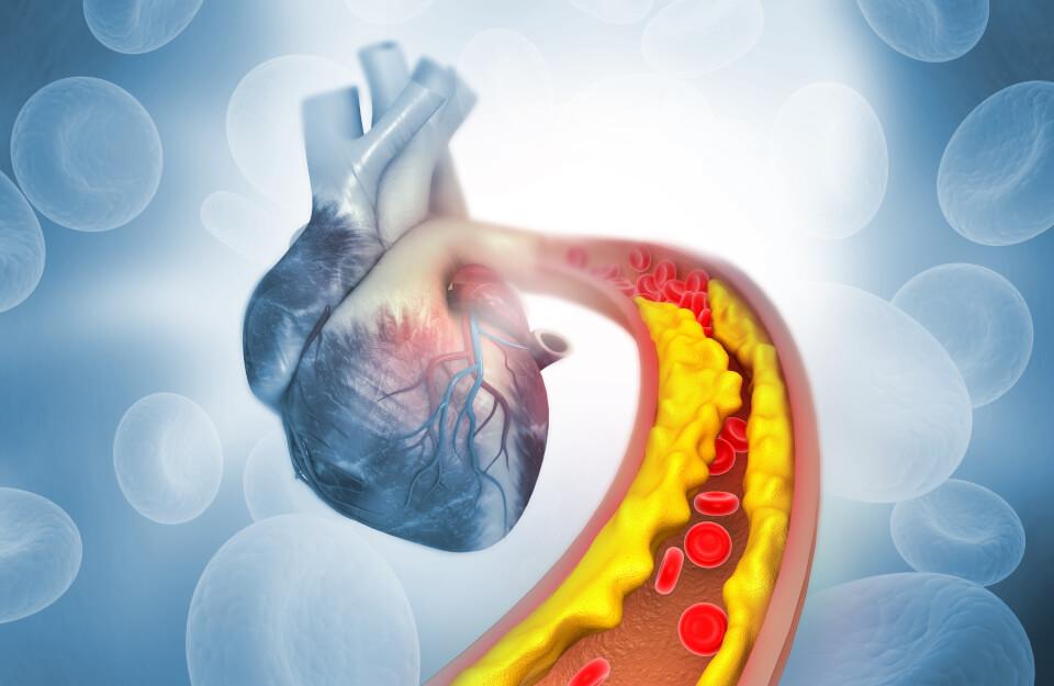 Control de Colesterol y Triglicéridos altos