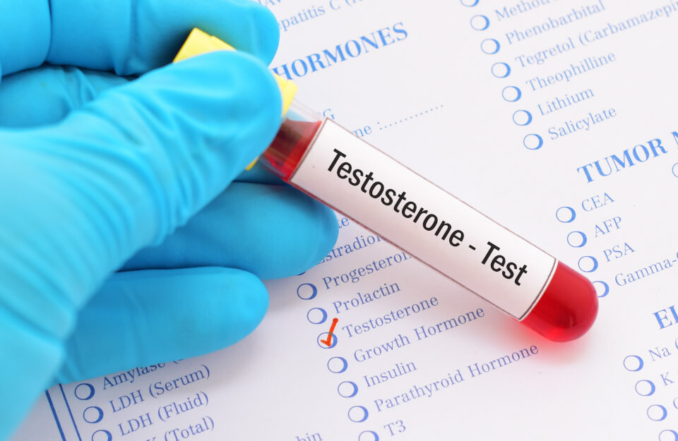 Examen de Testosterona